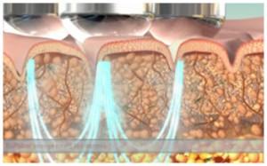 Le-Masque-Schoonheidssalon-Cuijk-Behandeling_TRIPOLLAR