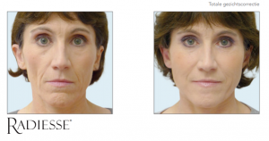 Radiesse totale gezichtscorrectie
